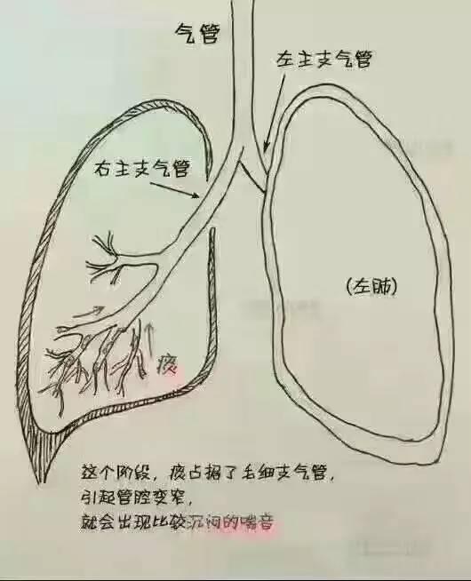 咳嗽是什么原理_咳嗽咳出血是什么原因