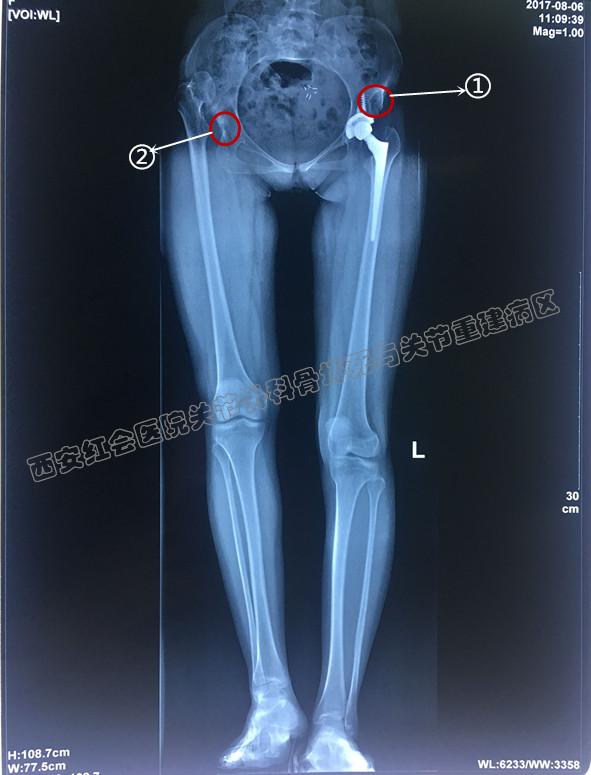 左髋关节骨性关节炎_发育性髋关节发育不良并髋关节骨性关节炎典型病例