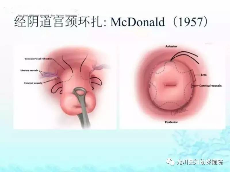 阴??-l9ab_母婴 正文  两种入路: 传统的经阴式宫颈环扎术 兴起的经腹腔镜宫颈内