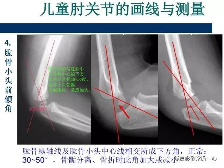 儿童肘关节损伤X线诊断