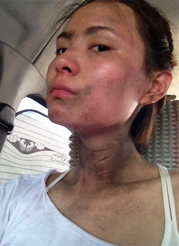 《东方战场》神龙茂受伤严重曾遍体鳞伤