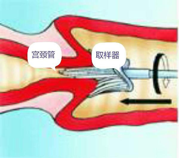 宫颈TCT HPV检查之后发生出血,不用过于紧张