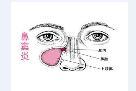鼻窦炎怎么治_治疗鼻窦炎的民间偏方,让鼻炎从此不再有